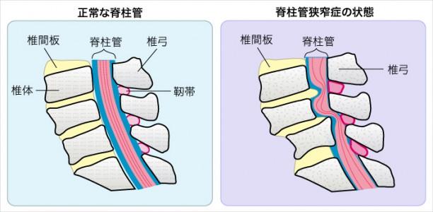 脊柱管狭窄症1